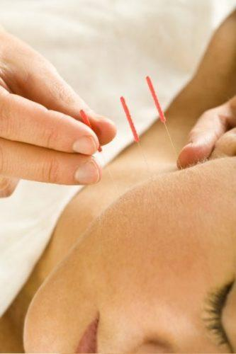 The Demystification of Acupuncture and How It REALLY Works